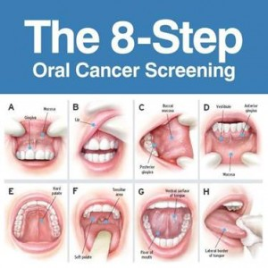 oral cancer check