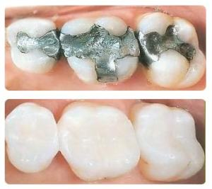 composite-fillings-4