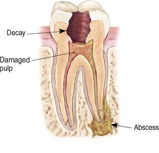 Damaged Tooth Needing Root Canal