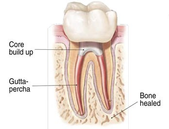 Healthy Tooth Post Root Canal