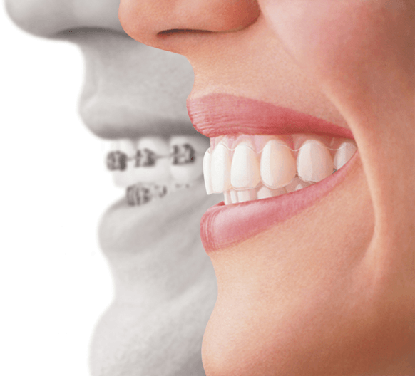 Best Invisalign Treatment in Southlake, TX